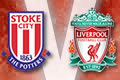 Stoke_story_120X80